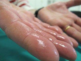 Hiperidrosis: Llorando por los poros de la piel